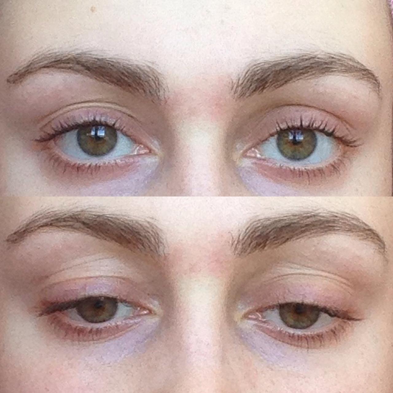 Птоз век: может ли косметический дефект лишить зрения?
