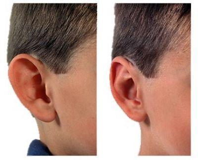 Пластика ушей (отопластика) в москве
