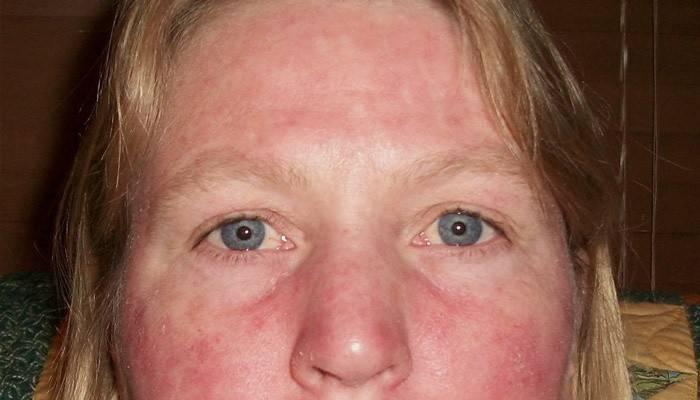 Шелушится и краснеет кожа лица. причины и признаки заболеваний, лечение