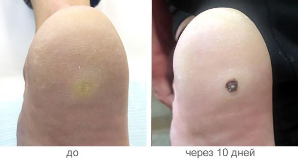 Как самостоятельно вывести бородавки на ногах медицинскими и народными средствами