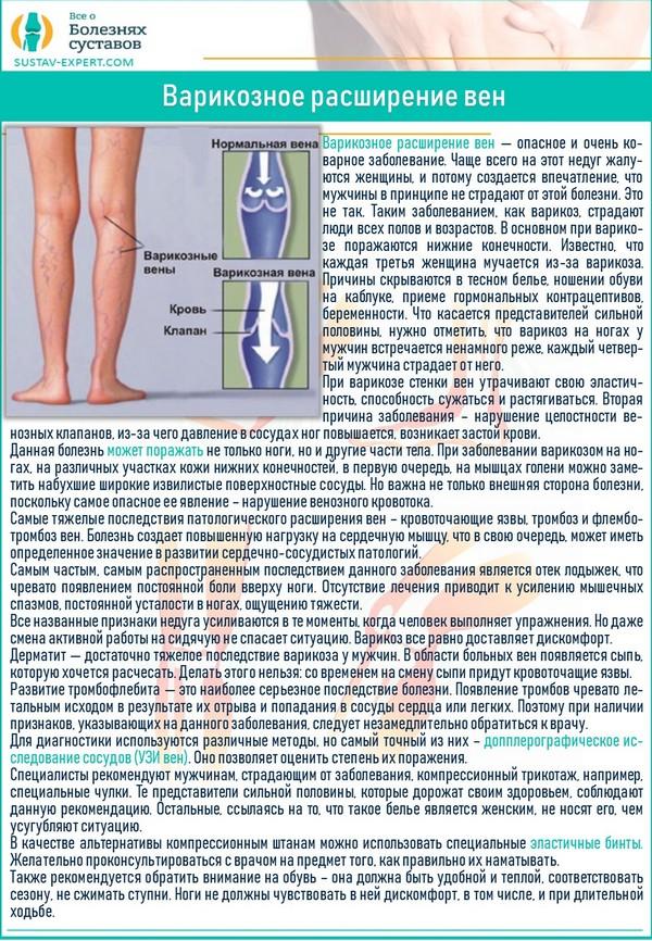 Симптомы варикоза на ногах у мужчин и его опасность