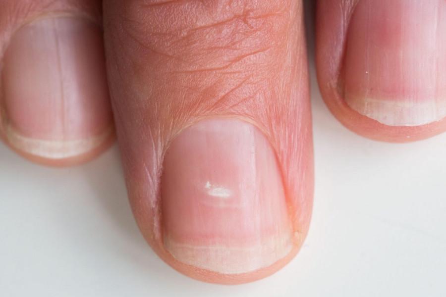 Онихолизис ногтей на руках и ногах - причины, симптомы, лечение