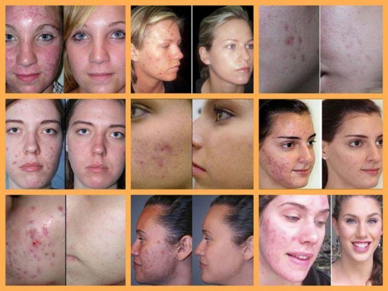 Прыщи на щеках у женщин: причины и как избавиться
