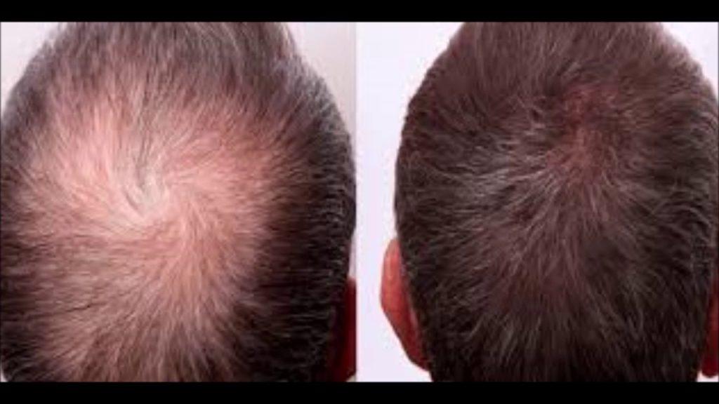 Аппаратное лечение облысения. дарсонваль от выпадения волос