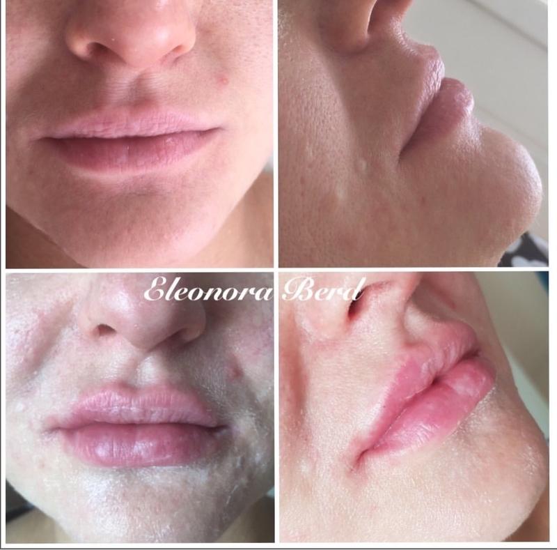 Увеличение губ имплантами. увеличение губ имплантатами: методика и реабилитационный период
