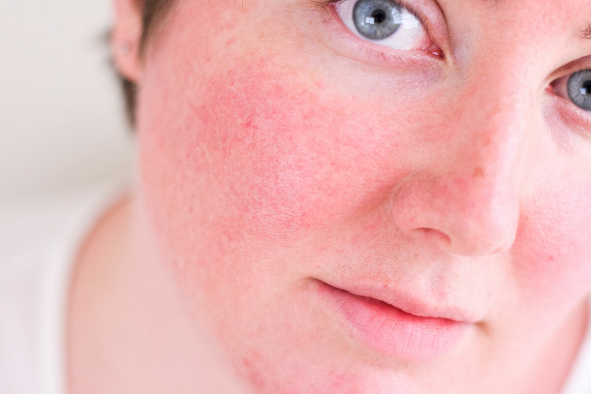 Как убрать раздражение на лице