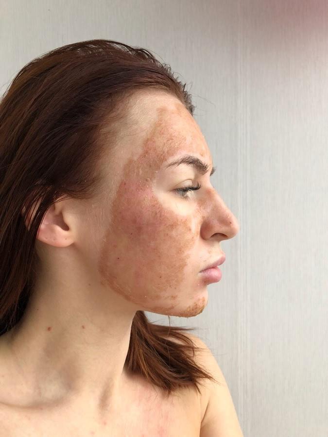 Лазерная шлифовка лица: отзывы, показания, противопоказания и процедура