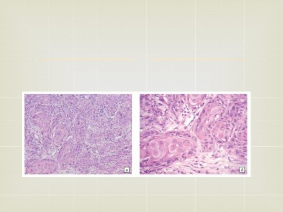 Плоскоклеточный неороговевающий рак левого угла рта - разное по медицине, физкультуре и здравоохранению