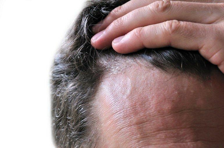Почему чешется голова и выпадают волосы: причины, лечение