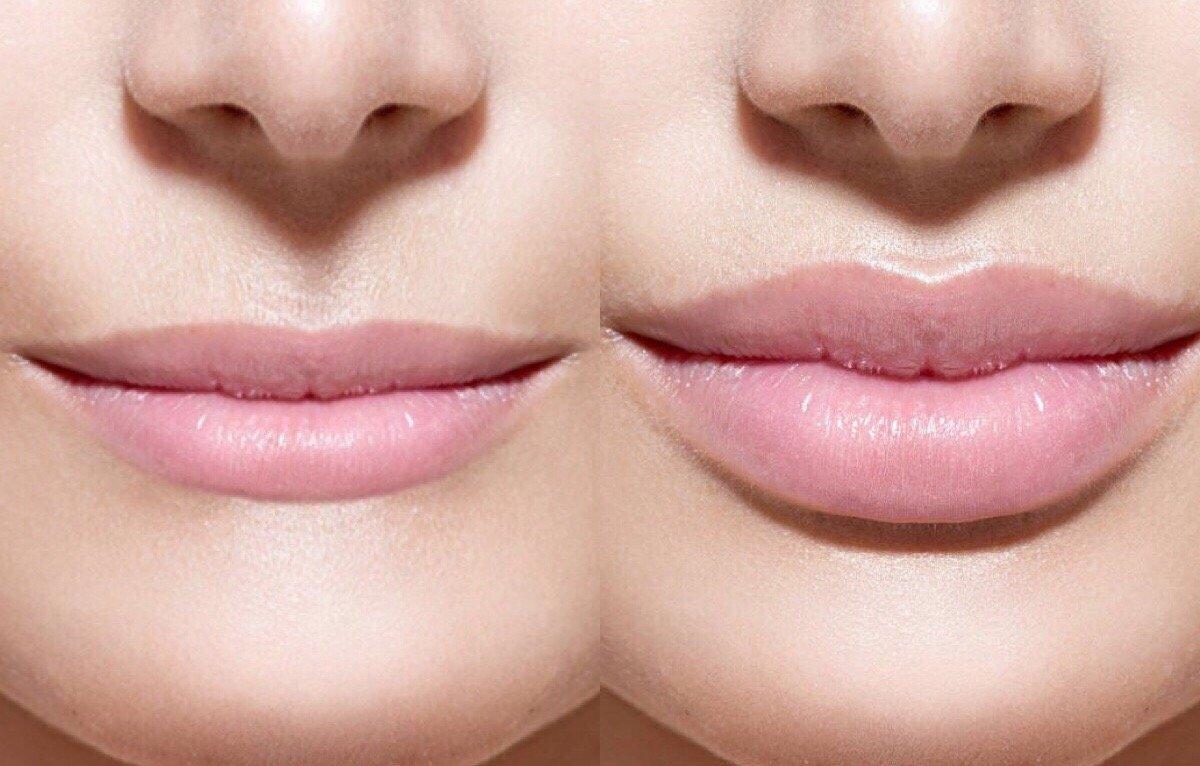 Увеличение губ: 10 вещей, которые нужно знать перед тем, как сделать это