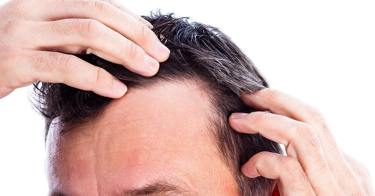 Что делать, если у мужчины сильно выпадают волосы?