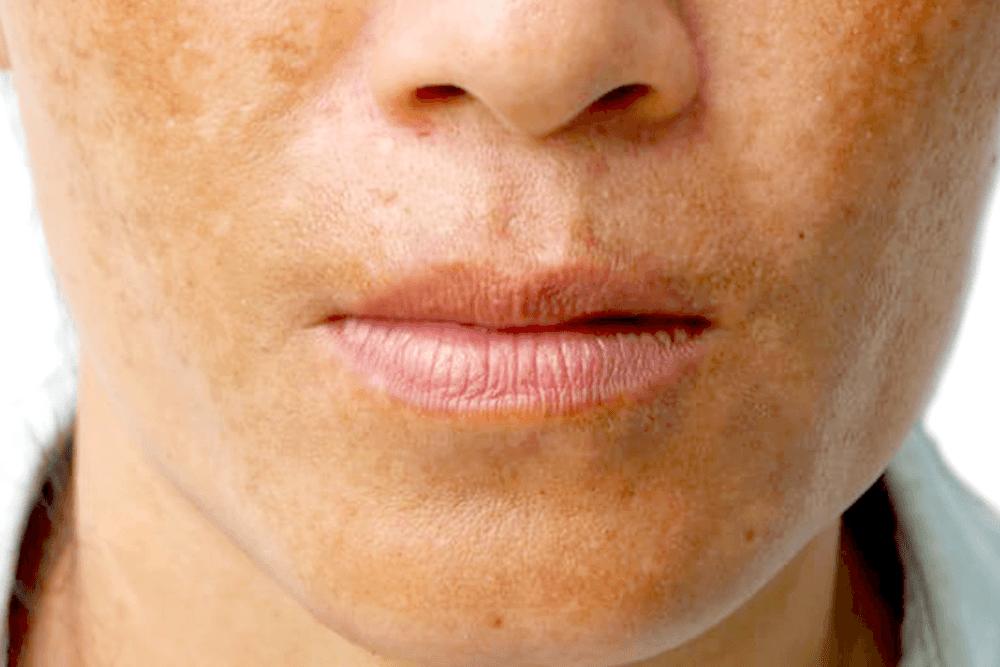 Мелазма: почему на лице появляются пигментные пятна — wonderzine