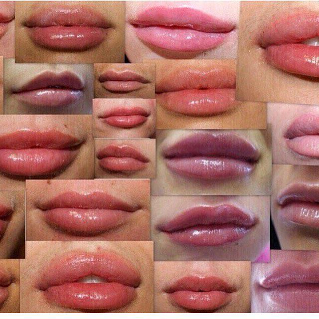 Рекомендации по уходу за губами после инъекций гиалуроновой кислотой