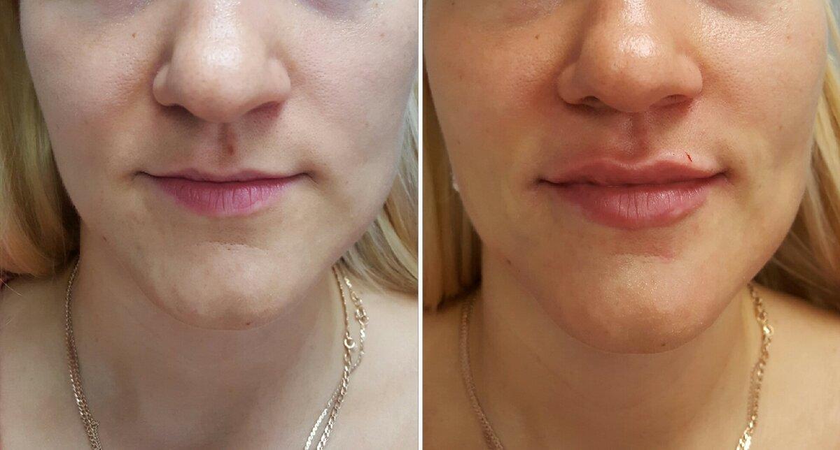 Средство от морщин: что такое филлер крем?