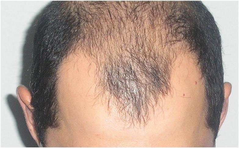 Алопеция у мужчин: что это такое, причины облысения, лечение выпадения волос в домашних условиях