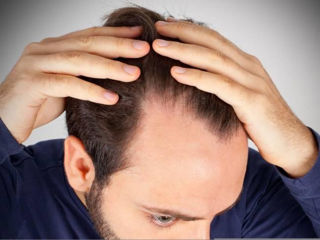 Ранняя лысина у мужчин: причины и лечение