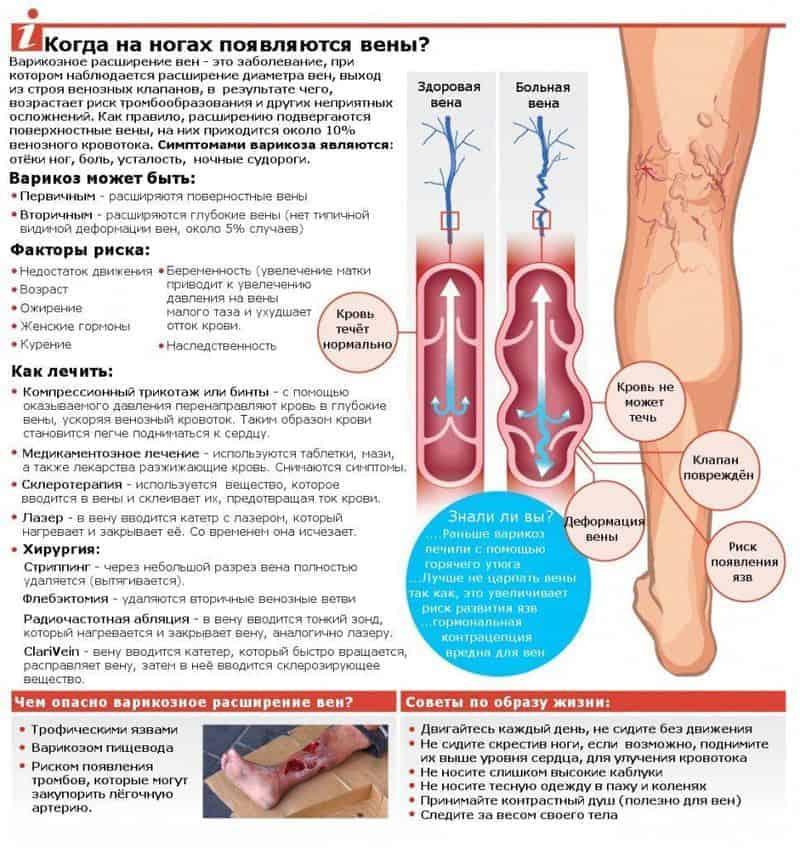 Симптомы варикозного расширения вен (варикоза) на ногах