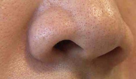Как избавиться от черных точек на лице в домашних условиях за 1 день