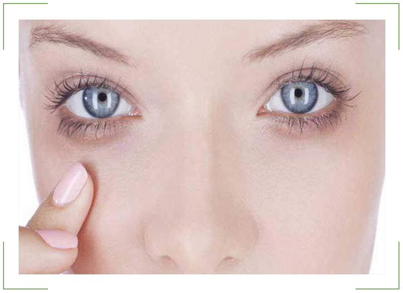 Причины появления синих кругов под глазами и как с ними бороться
