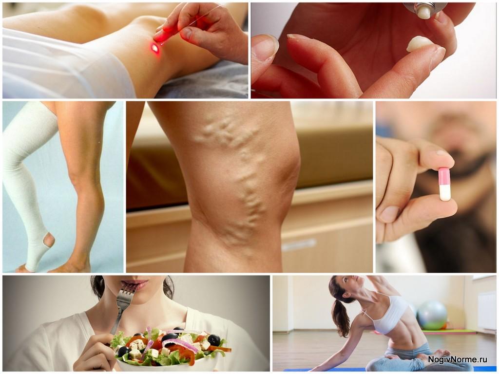 Варикоз нижних конечностей: лечение, причины и симптомы варикозного расширения вен ног
