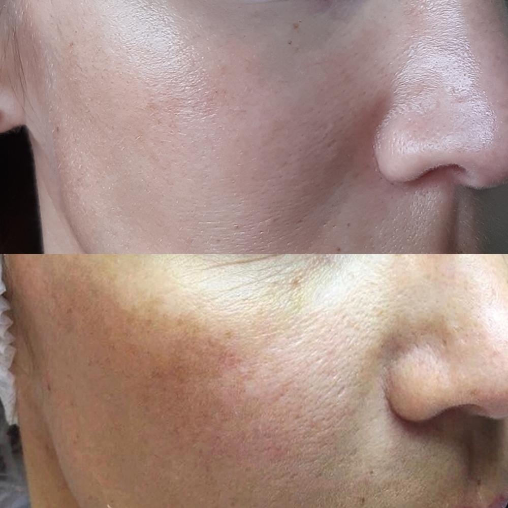 Фракционная мезотерапия кожи лица: что это такое, описание процедуры, эффективность