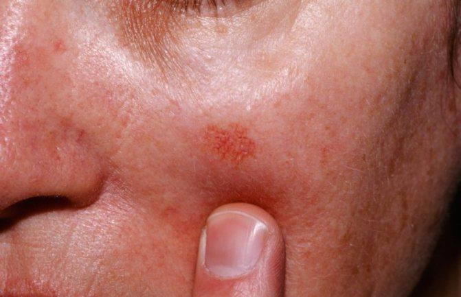 Витамины себорейный кератоз кожи