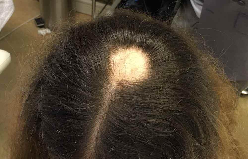 Как правильно лечить очаговую (гнездную) алопецию у женщин и мужчин