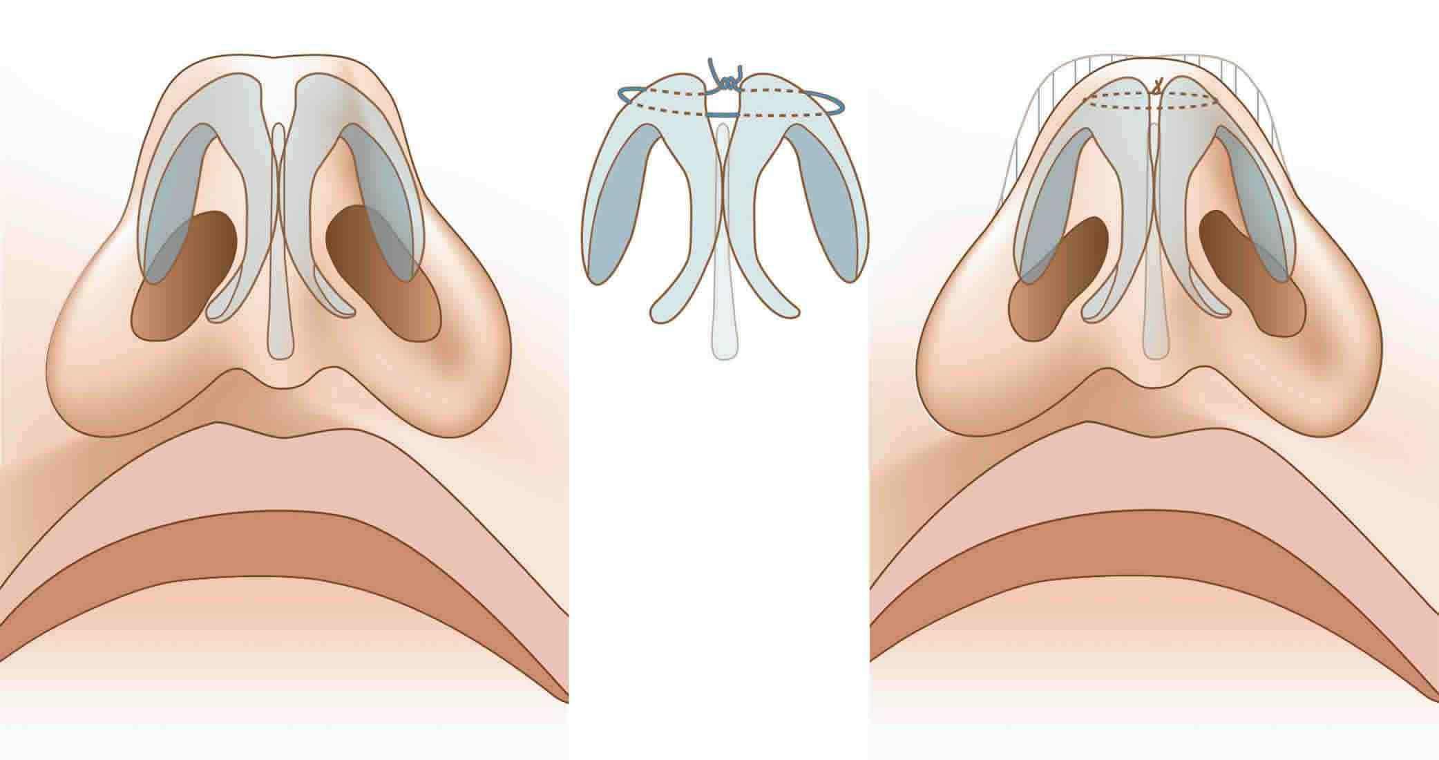 Септопластика: фото до и после и описание операции по исправлению носовой перегородки