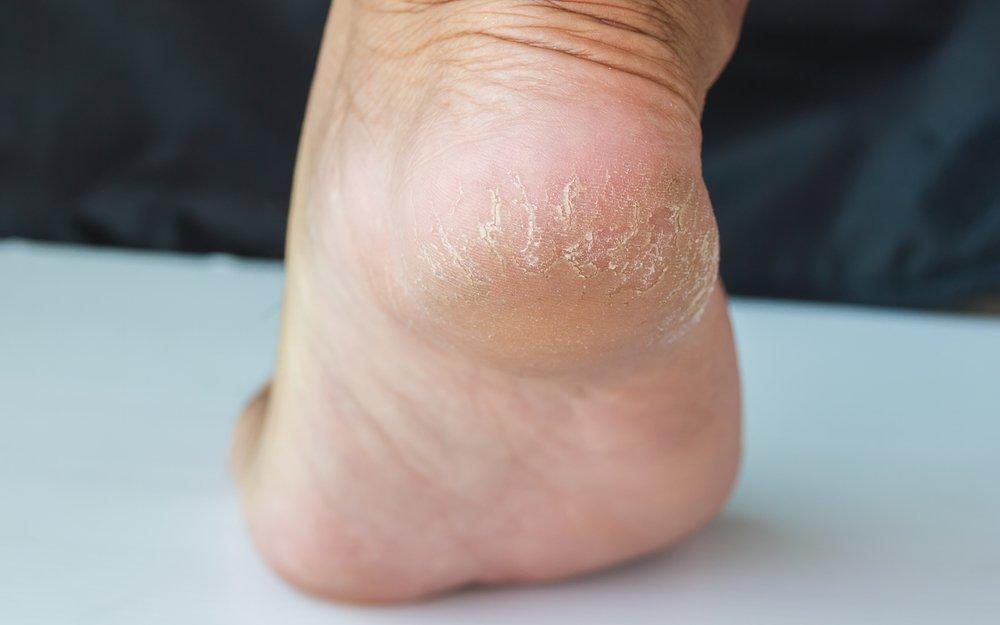 Причины появления и способы устранения трещин между пальцами ног