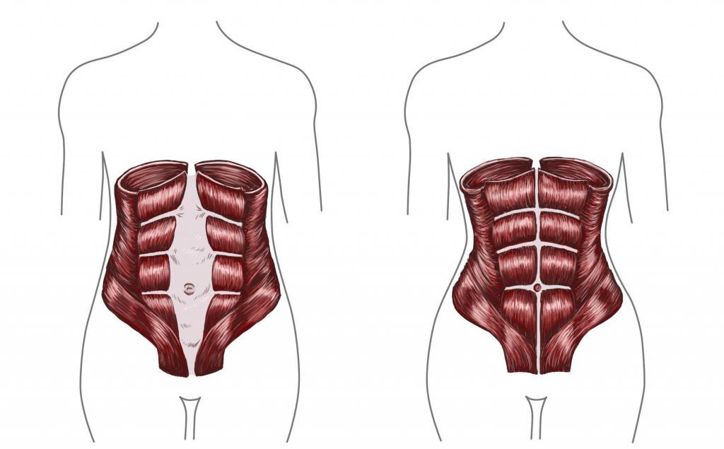 Диастаз после родов как определить, упражнения и операция