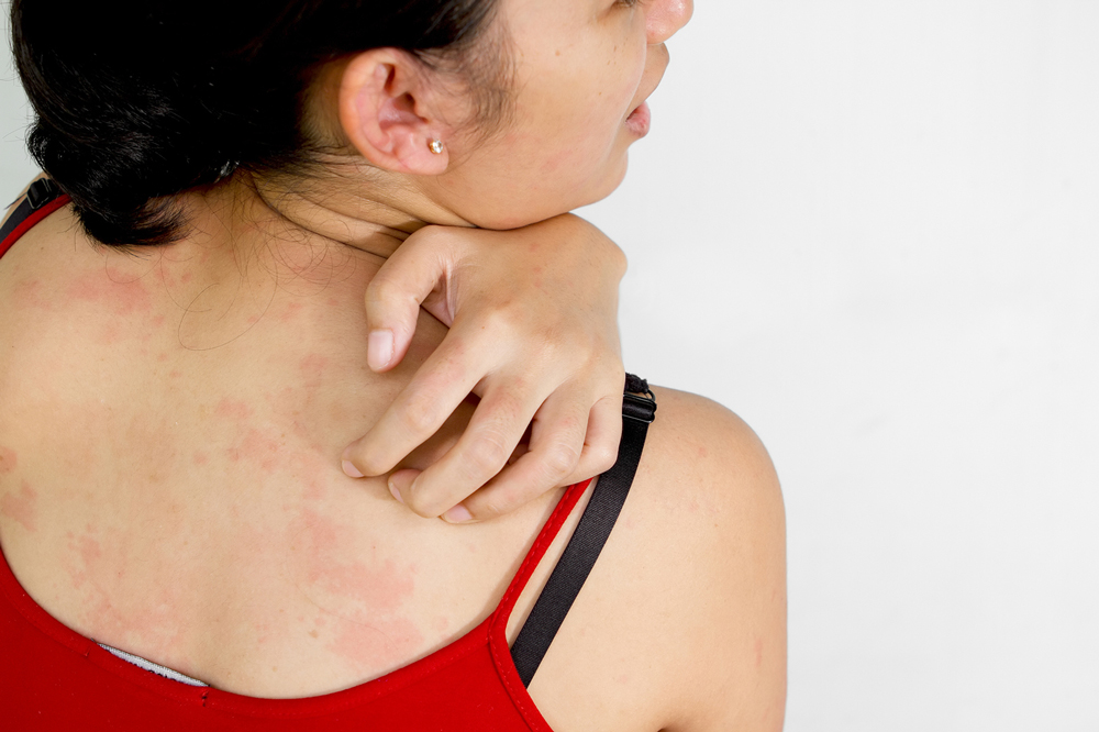 Крапивница. причины, виды и симптомы заболевания. лечение крапивницы