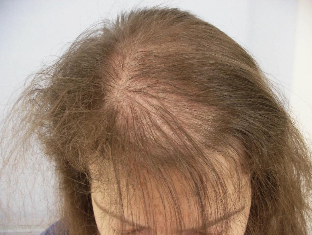 Выпадение волос при стрессе