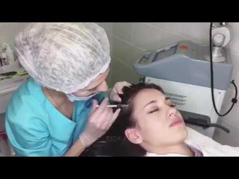 Мезотерапия для волос на дому