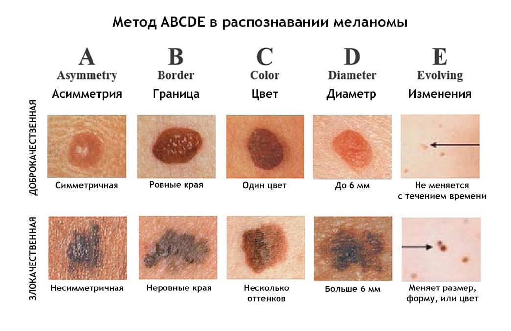 Рак кожи – симптомы, первые признаки, виды, как выглядит начальная стадия на фото, лечение