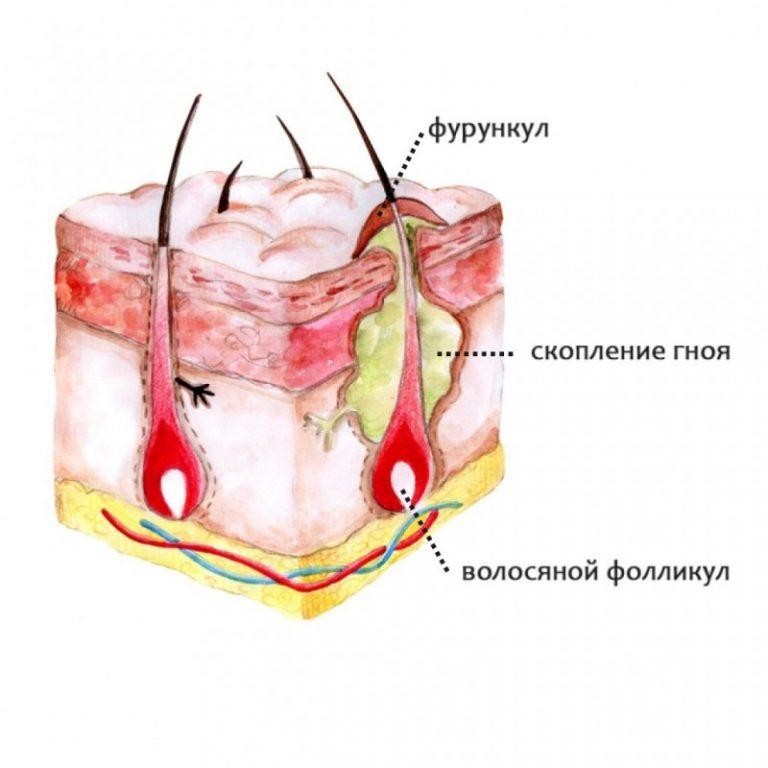 Лечение чирьев и фурункуловКак правильно лечить фурункул в домашних условияхФурункул и фурункулез