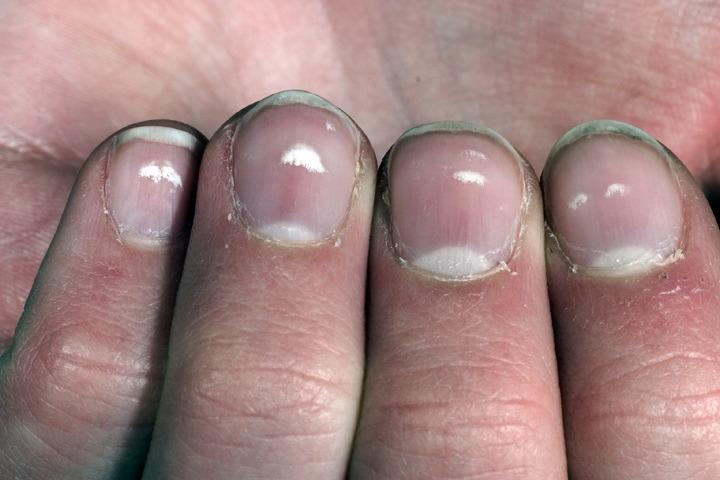 Наиболее вероятные причины появления темного пятна на ногте большого пальца ноги