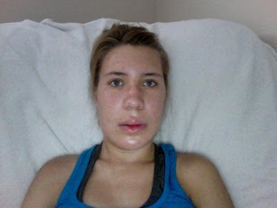 Отек лица - симптомы, причины, лечение, домашние средства, профилактика
