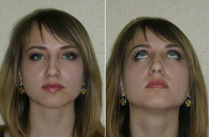 Операция по исправлению носовой перегородки или септопластика