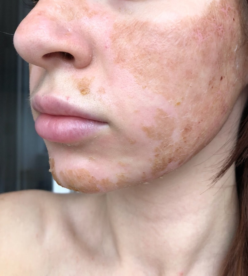 Лазерная шлифовка кожи, от чего зависит результат