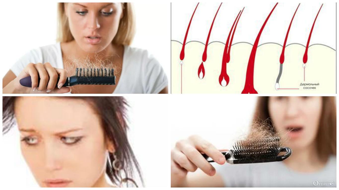 Выпадение волос: как справиться с проблемой
