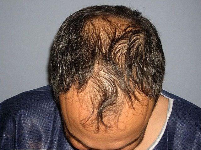 Обзор методов лечения очаговой алопеции у мужчин