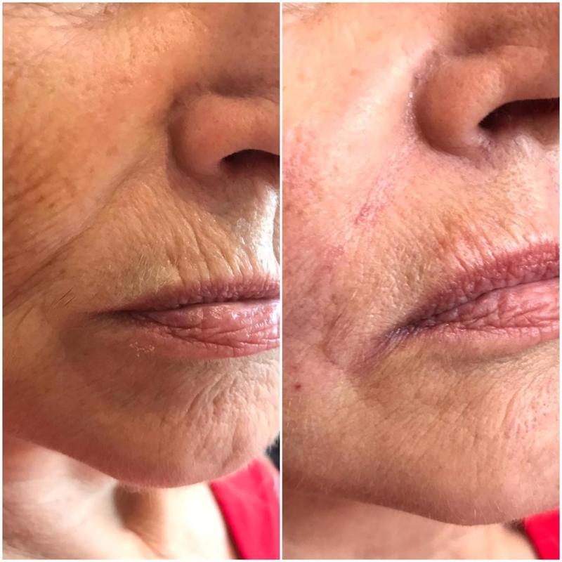 Омоложение кожи лица: обзор лучших процедур и средств
