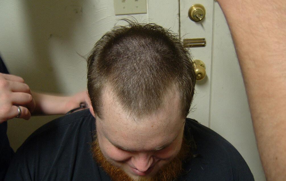 Причины выпадения волос у мужчин и обзор методов лечения