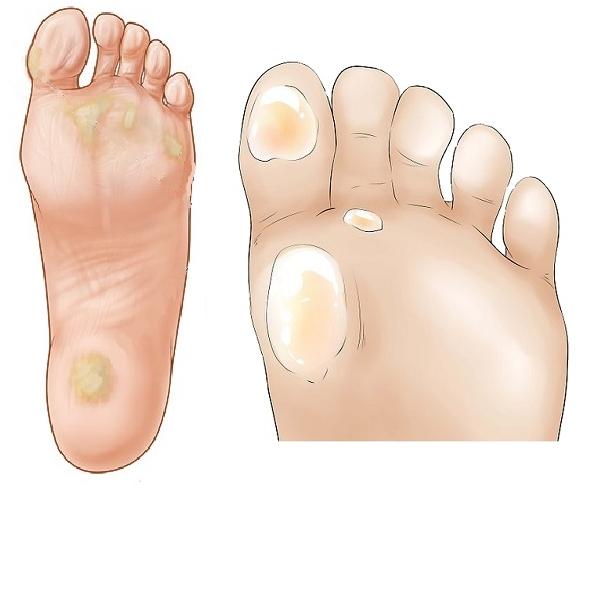 Как вывести уксусом мозоли, шпоры и натоптыши: лечение народными средствами проблем на ногах