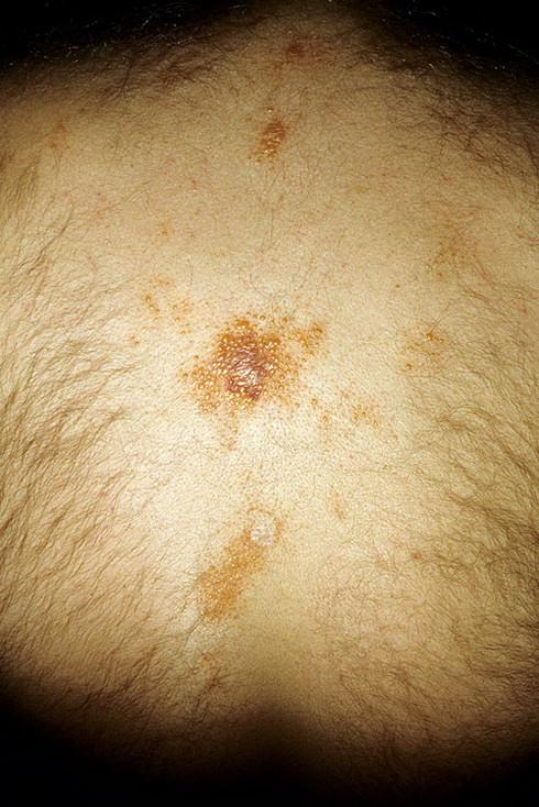 Амилоидоз печени у человека: причины, симптомы, методы лечения, профилактика