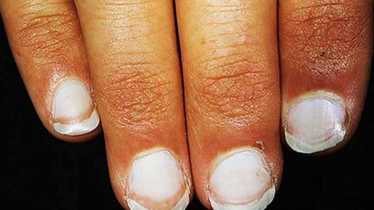 Черные темные пятна на ногтях – в чем причина появления?