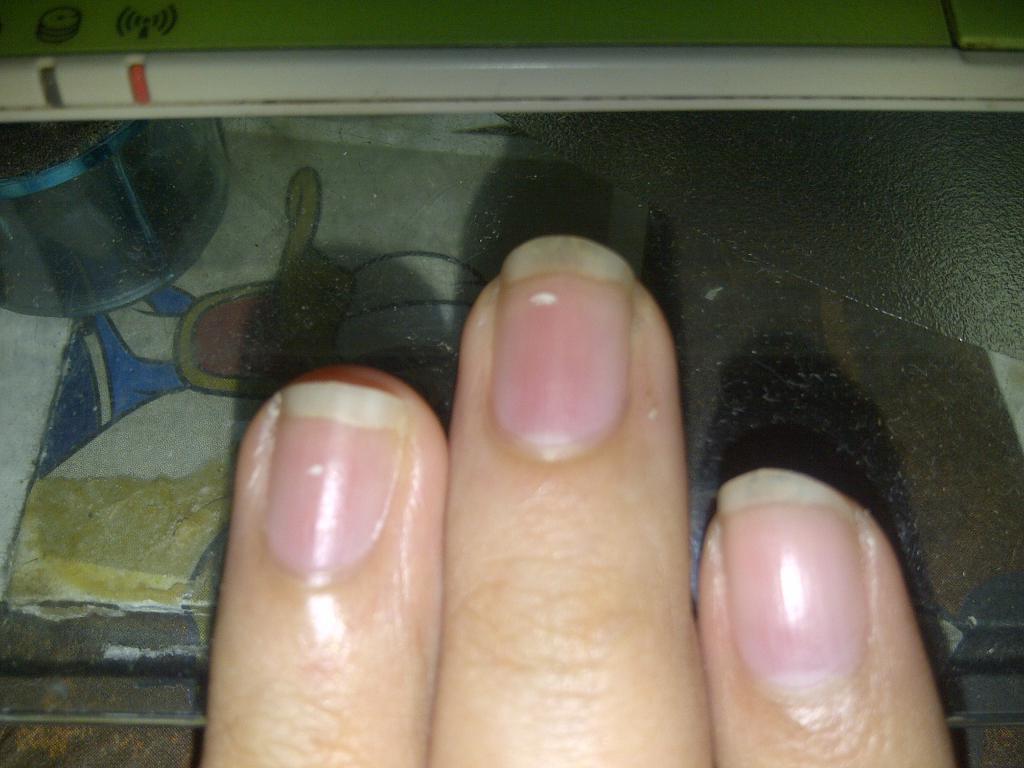 Темное пятно на ногте большого пальца ноги