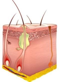 Как лечить фурункулёз? лечение фурункулёза в домашних условиях
