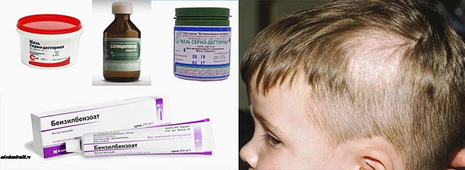 Лишай | симптомы | диагностика | лечение - docdoc.ru