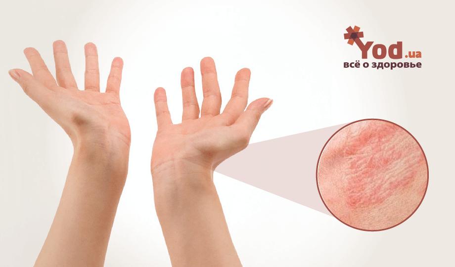 Простой контактный дерматит: понятие, причины, клинические проявления и лечение